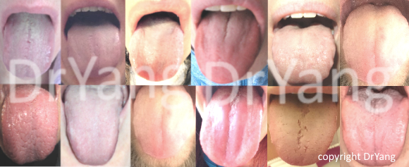 kinesisk medicin tungan